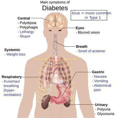 Diabetes: A Unit Study